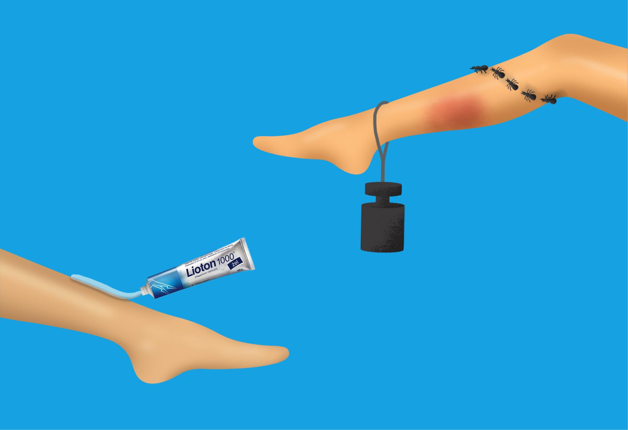 Illustration von Beinen für den Website Relaunch Lioton von der Healthcare Werbeagentur mcs